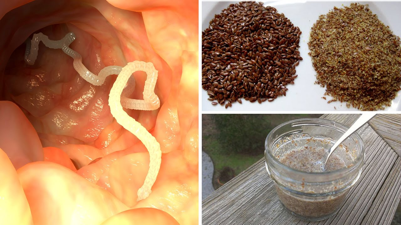 Cum Nikworm, Polygemma si Wormex te pot ajuta sa scapi de paraziti intestinali